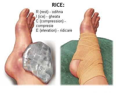 artroza gleznei imagini