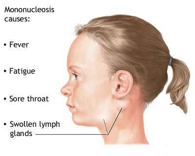 Mononucleoza - semne si simptome