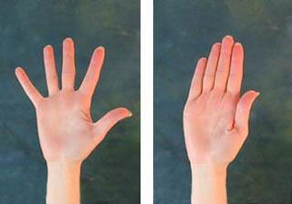 Durere în mâna stângă sau mâna dreaptă, degetul, palma, cauze