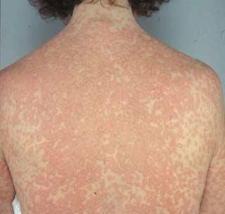 Alergia la medicamene