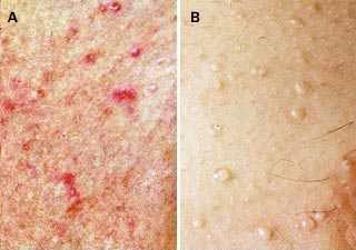 Miliaria (iritatiile de la caldura)