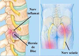 nat pentru hernia spinarii