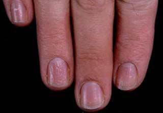 terapia biologica in poliartrita reumatoida simptome pneumonie