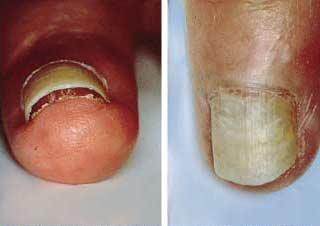 dermatita seboreica fata poze amuzante pentru