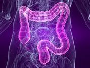 Cauze de hemoragii digestive superioare - varicele esofagiene