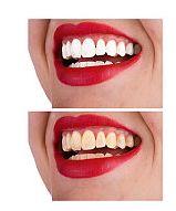 Albirea dentara – intre mit si realitate