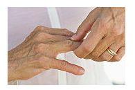 artrita reactiva prognostic