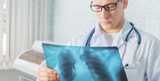 Aspergiloza: simptome, cauze si tratament