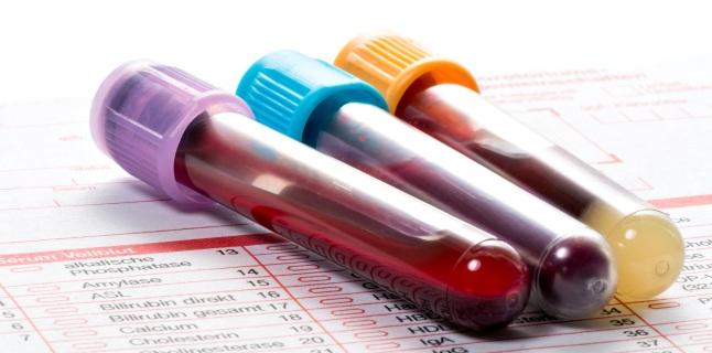 Icterul: tipuri, cauze, simptome, tratament