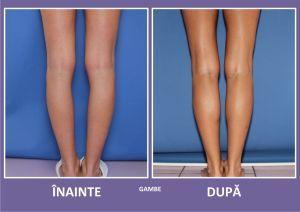 Implanturile de gambe, un nou trend in chirurgia estetica – 1 din 10 femei opteaza pentru o astfel de interventie