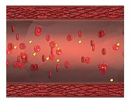 Ischemia arteriala periferica
