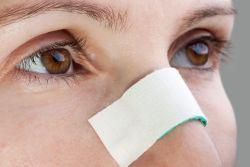fractura nasului de vedere
