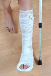 prim ajutor pentru dureri la nivelul articulațiilor picioarelor