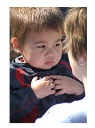Spina bifida - afectiune congenitala a coloanei vertebrale