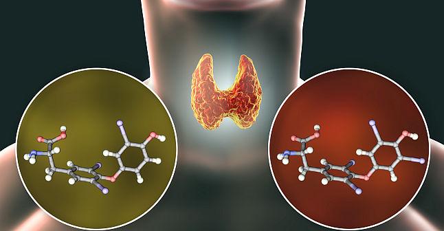 Trateaza natural hipotiroidismul - glanda tiroida lenesa