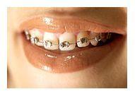 Tratamentul ortodontic: tehnica linguala