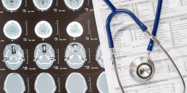 Recunoaste semnele accidentului vascular cerebral