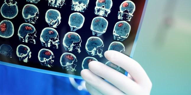 Depistarea primelor semne ale accidentului vascular cerebral