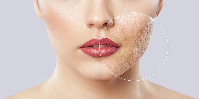 Ingrijirea tenului si tratarea acneei