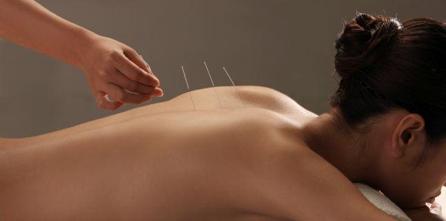 Argumente pro si contra acupuncturii
