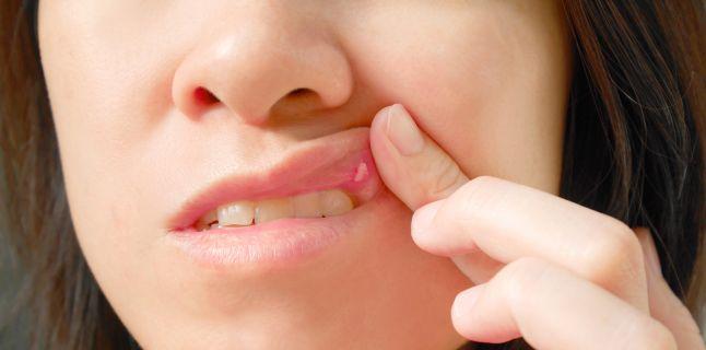 Aftele bucale - de ce apar si cum se pot trata