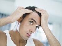 Alopecia - caderea parului, chelia sau calvitia