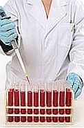 Testul de dozare a anticorpilor antinucleari