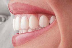 Aparatele dentare invizibile, un zambet perfect pentru fiecare