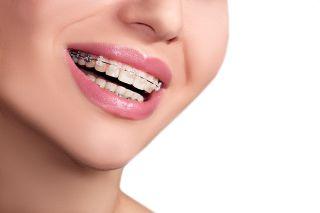 Semnele care arata ca ai nevoie de un aparat dentar