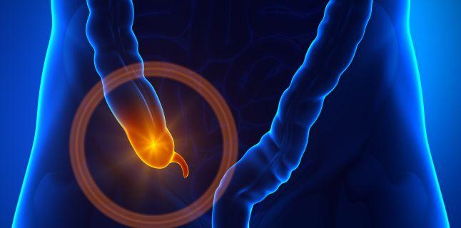 Primele simptome in caz de apendicita