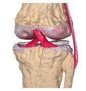 Ce este artroza?