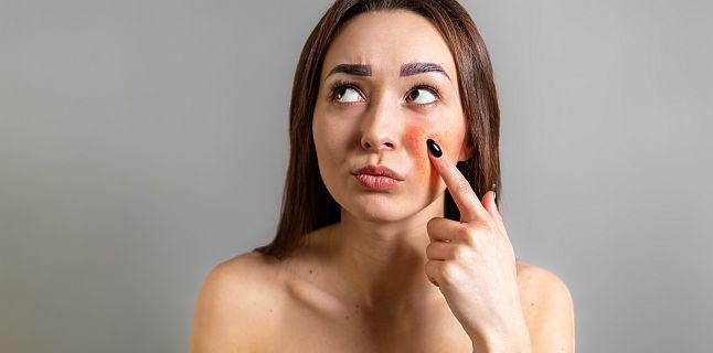 Eritemul infectios sau boala obrajilor palmuiti