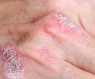 Boli de piele autoimune