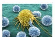 Bolile sistemului imunitar