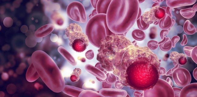 Cancerul peritoneal: cauze, stagii, simptome, tratament si prognostic