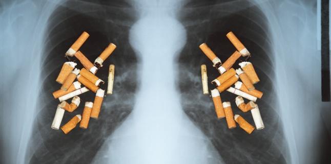 Cancerul pulmonar - cum poti recunoaste din timp simptomele?