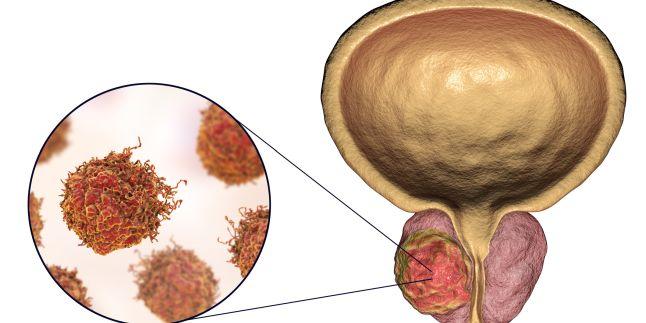 Care sunt simtomele cancerului de prostata