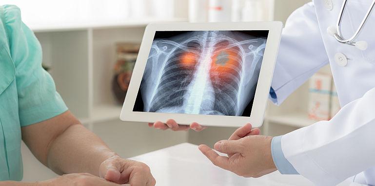 Care sunt simptomele precoce ale cancerului pulmonar?