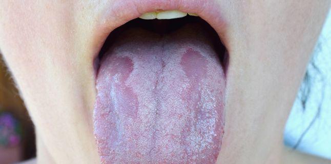 Candidoza bucala - cauze, simptome si tratament