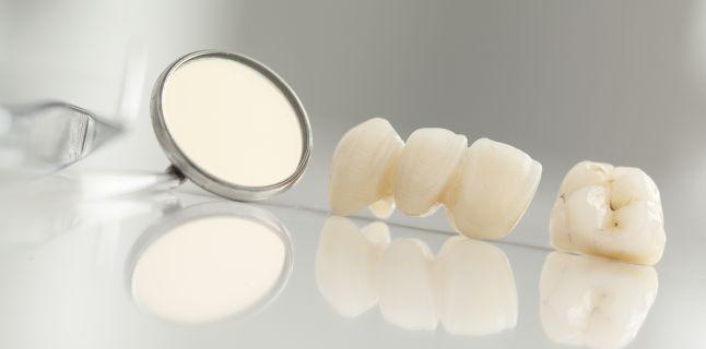 Se pot vindeca cariile dentare de la sine?