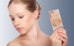 Mituri despre cicatrici