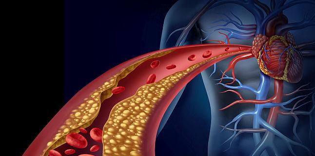Scaderea colesterolului marit (hipercolesterolemie) cu cel mai popular supliment alimentar