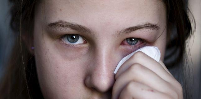 Conjunctivita - cauze, simptome, tratament