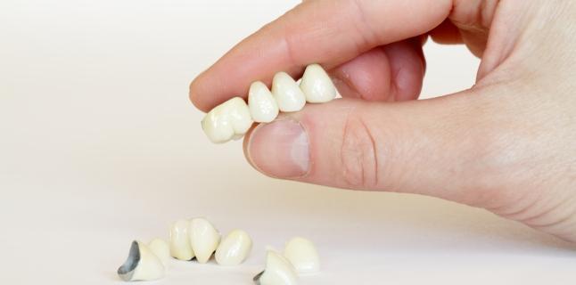 Coroanele si puntile dentare - avantaje si dezavantaje