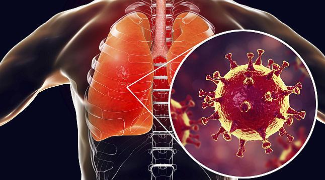 Al optulea caz diagnosticat cu COVID-19 (coronavirus) pe teritoriul Romaniei
