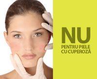 6 sfaturi care va scapa de sensibilitatea pielii afectate de cuperoza