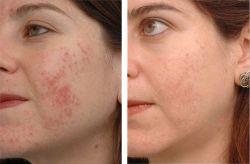 Ajuta-ti copilul in lupta impotriva acneei!