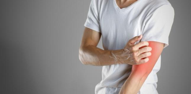 Hainele noi, risc de reactii alergice severe. Cum prevenim imbolnavirile?