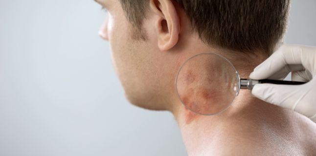 Poate dermatita seboreica sa provoace caderea parului?