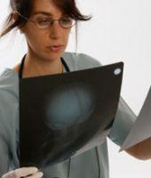 Diagnosticarea cancerului de colon